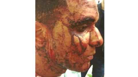 Francesco Hoenye was attacked Pic: Met police