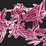 Tower Hamlets has a TB incident rate of 38.3 per 100,000 people Pic: Microbe World